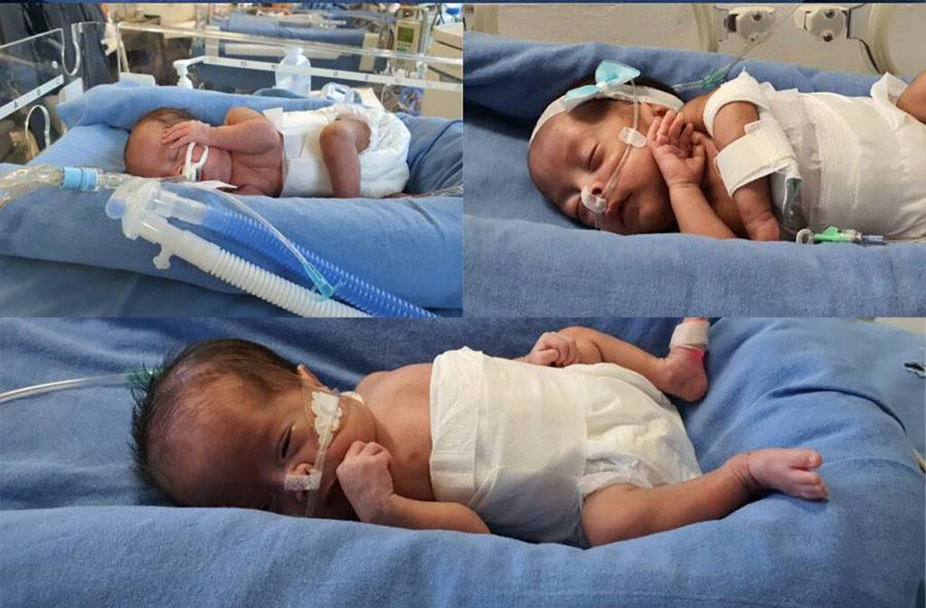 Mujer se convierte en madre de trillizas a pesar de que tenía dispositivo intrauterino; esto en el hospital Juárez de México